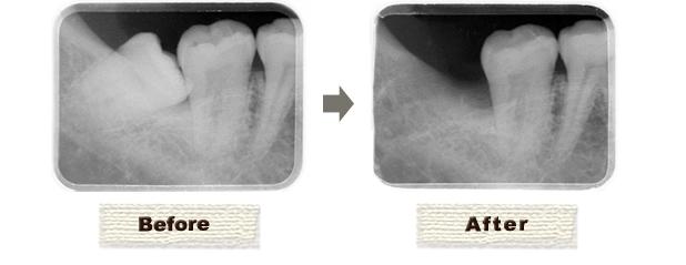 歯科口腔外科(親知らずの抜歯)