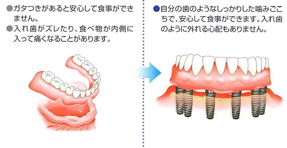 全ての歯を失った場合