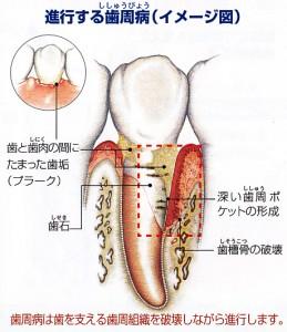 進行する歯周病