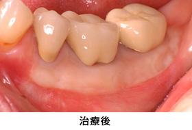 歯肉退縮遊離歯肉移植治療後