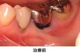 歯肉退縮遊離歯肉移植治療前