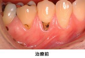 歯肉退縮結合組織移植治療前