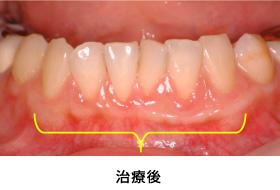 歯肉退縮組織再生症例2治療後