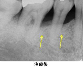 歯肉組織再生治療右下臼歯部case2治療後