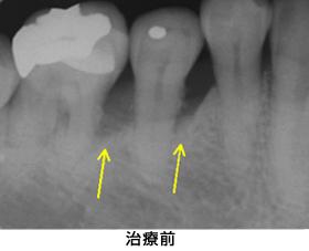 歯肉組織再生治療右下臼歯部case2治療前