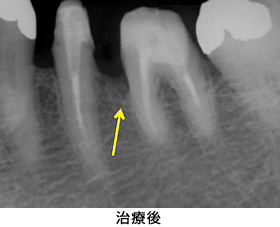 歯肉組織再生治療左下臼歯部case1治療後