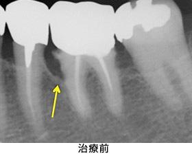 歯肉組織再生治療左下臼歯部case1治療前