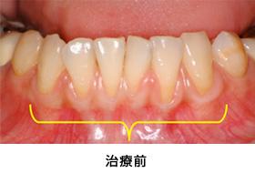 歯肉退縮組織再生症例2治療前