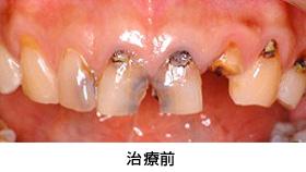 前歯多数歯の歯冠延長術治療前