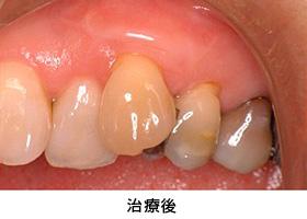 Case5.歯肉退縮を結合組織移殖によって治療後