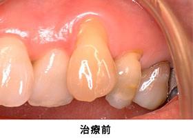 Case5.歯肉退縮を結合組織移殖によって治療前