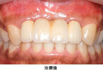 Case4.陥没した歯ぐきを歯槽堤増大術によって治療後