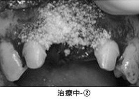 Case4.陥没した歯ぐきを歯槽堤増大術によって治療中②