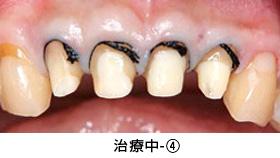 前歯多数歯の歯冠延長術治療中④