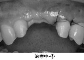 Case4.陥没した歯ぐきを歯槽堤増大術によって治療中④