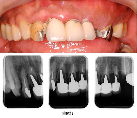 case2.矯正的挺出と歯冠延長術の併用治療前