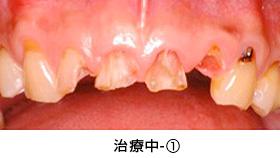 前歯多数歯の歯冠延長術治療中①