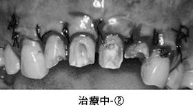 前歯多数歯の歯冠延長術治療中②