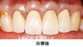 前歯多数歯の歯冠延長術治療後