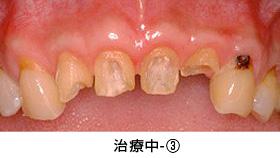 前歯多数歯の歯冠延長術治療中③