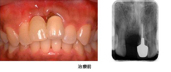 Case4.陥没した歯ぐきを歯槽堤増大術によって治療前