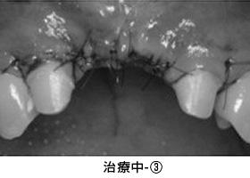 Case4.陥没した歯ぐきを歯槽堤増大術によって治療中③