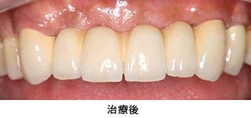 case2.矯正的挺出と歯冠延長術の併用治療後