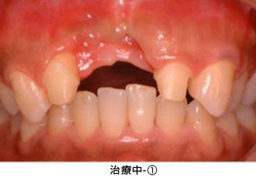 Case4.陥没した歯ぐきを歯槽堤増大術によって治療中①