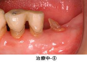 Case3矯正的挺出と遊離歯肉移植術の併用症例治療中6