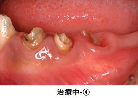 Case3矯正的挺出と遊離歯肉移植術の併用症例治療中4