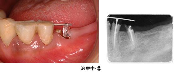 Case3矯正的挺出と遊離歯肉移植術の併用症例治療中2