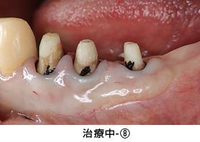 Case3矯正的挺出と遊離歯肉移植術の併用症例治療中8
