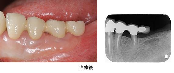 Case3矯正的挺出と遊離歯肉移植術の併用症例治療後