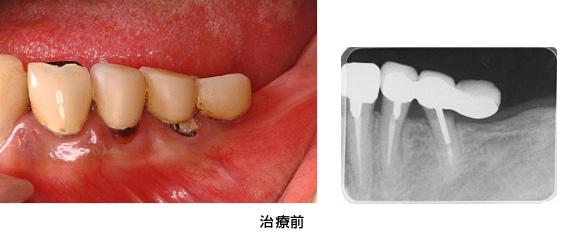 Case3矯正的挺出と遊離歯肉移植術の併用症例治療前