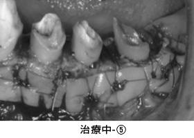 Case3矯正的挺出と遊離歯肉移植術の併用症例治療中5