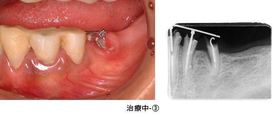 Case3矯正的挺出と遊離歯肉移植術の併用症例治療中3