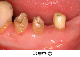 Case3矯正的挺出と遊離歯肉移植術の併用症例治療中7