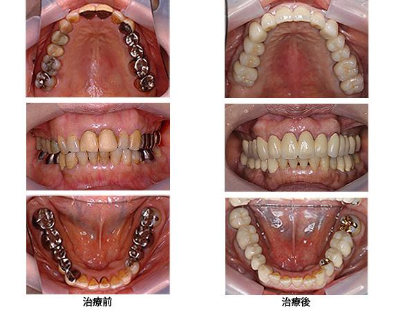 全顎治療(フルマウス)Case3歯周病由来の治療