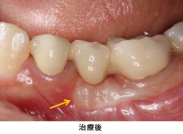 Case4.歯冠延長術と遊離歯肉移植の併用症例治療後
