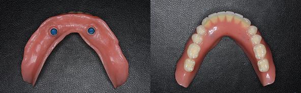 Case5.下顎前歯のインプラント治療(ロケーター義歯)完成した下の入れ歯
