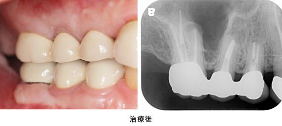 歯根端切除術と歯冠延長術の併用症例治療後