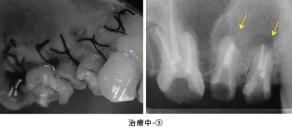 歯根端切除術と歯冠延長術の併用症例治療中-③