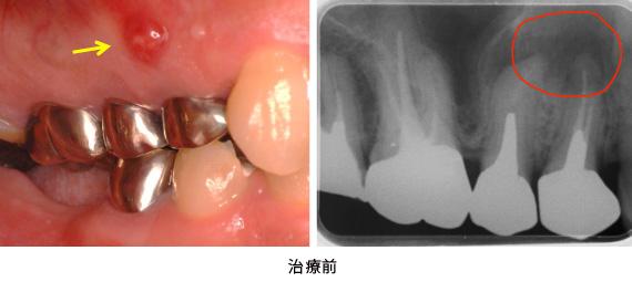 歯根端切除術と歯冠延長術の併用症例治療前