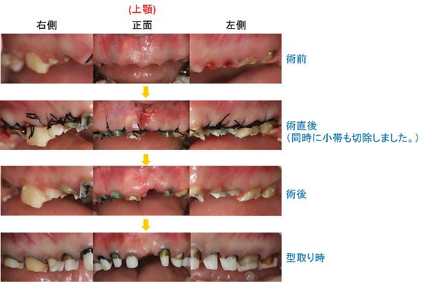 Case4.虫歯由来の治療(歯冠延長術)治療中-上顎