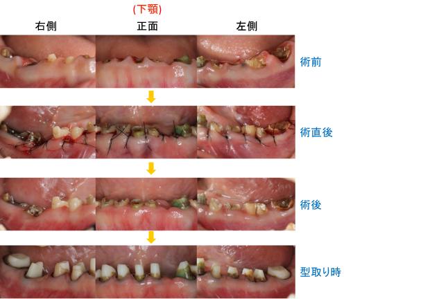 Case4.虫歯由来の治療(歯冠延長術)治療中-下顎