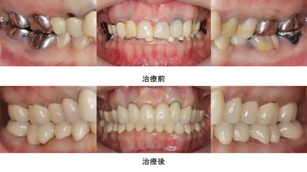 Case4.虫歯由来(歯冠延長術)治療後2