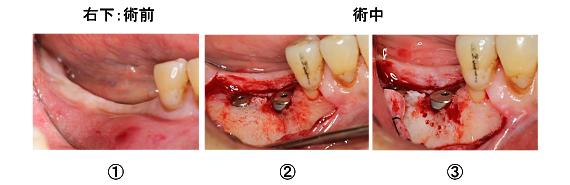 Case7.両側臼歯部のインプラント治療(サイナスリフト+GBR)14