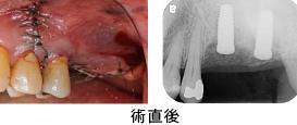 Case7.両側臼歯部のインプラント治療(サイナスリフト+GBR)8