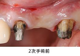 Case6.左上のインプラント治療(GBR)_2次手術前