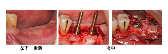 Case7.両側臼歯部のインプラント治療(サイナスリフト+GBR)12
